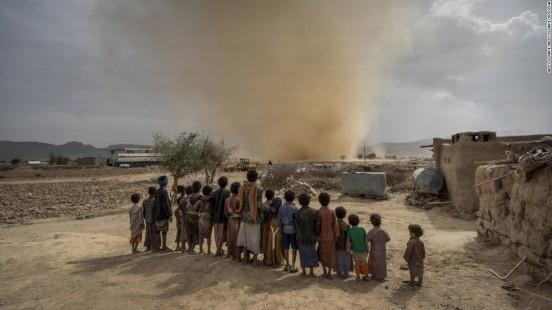 jaff 170619150914-23-yemen-civil-war-malnutrition-super-169